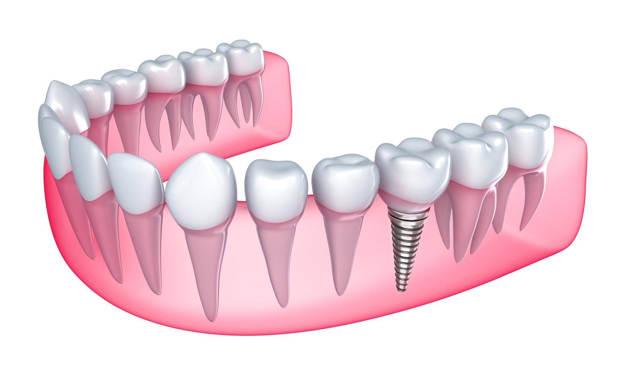 http://clinicascume.com/wp-content/uploads/2016/09/implante.jpg