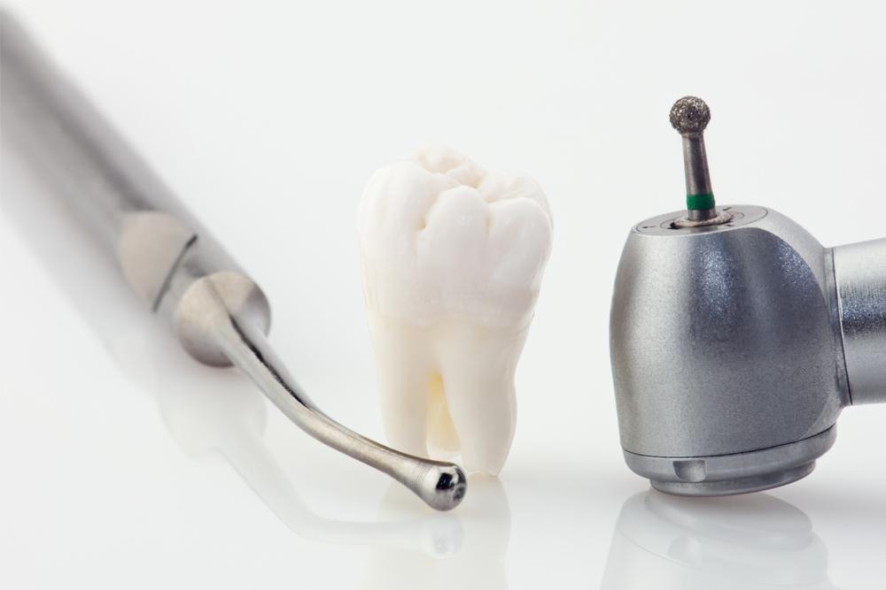 http://clinicascume.com/wp-content/uploads/2017/05/endodoncia.jpg